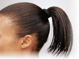 tight ponytail causes baldness